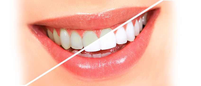 Teeth Cleaning Markham