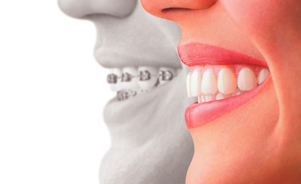 Invisalign Vs Traditional Braces