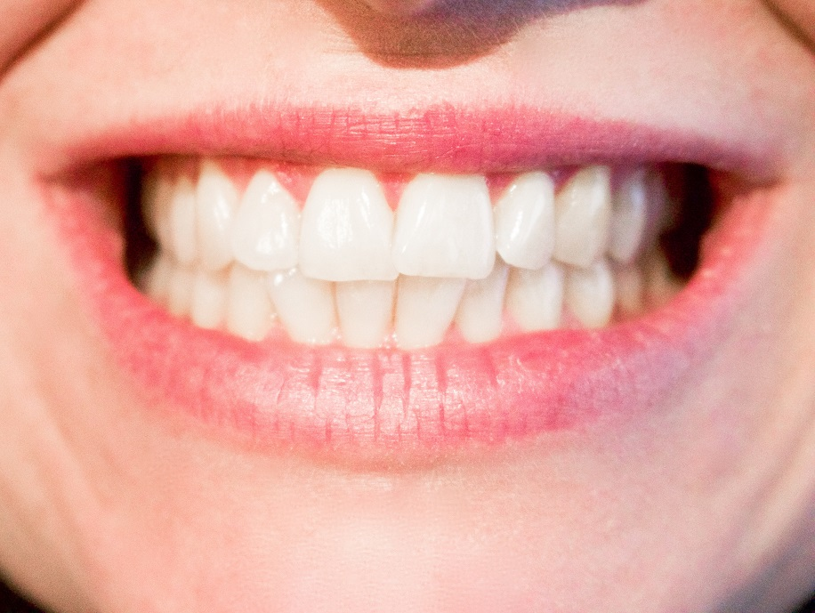teeth whitening in Markham